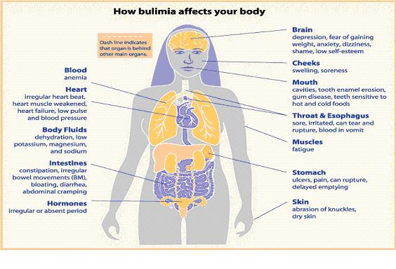 The Role Of The Vagus Nerve In Bulimia